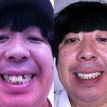 【驚愕】インプラントで真っ白な歯に治療した芸能人 5選