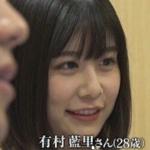 有村架純のお姉ちゃん・・・整形手術で顔が変わり別人に!